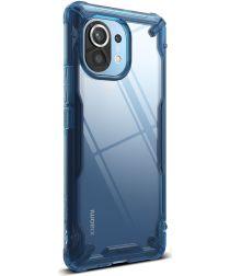 Alle Xiaomi Mi 11 Hoesjes